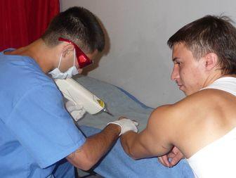аппарат для удаления татуировок
